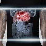 Viêm gan siêu vi B có triệu chứng và biến chứng gì?
