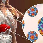 Viêm gan tự miễn là gì? Những điều không phải ai cũng biết