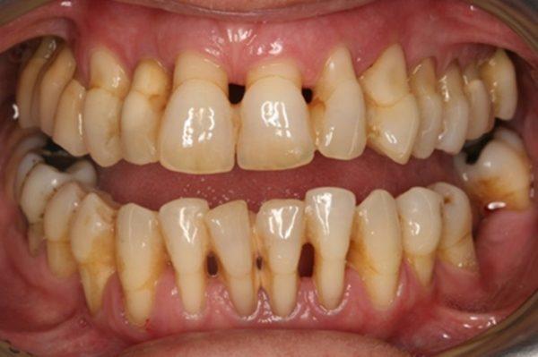 Do lợi bị tụt nên giữa các răng hình thành khoảng cách