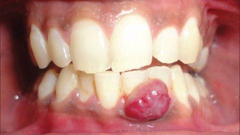 Các phương pháp điều trị viêm nướu răng có mủ
