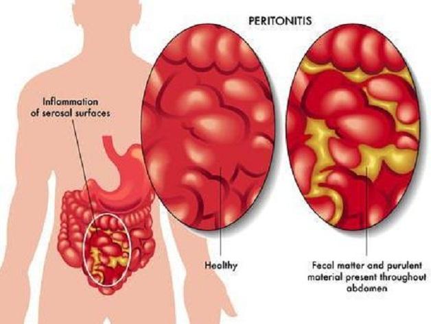 Viêm phúc mạc bệnh học là bệnh lý rất nặng trong ngoại khoa, đòi hỏi sự can thiệp y tế ngay lập tức