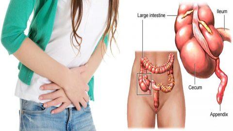Viêm phúc mạc tiểu khung: nguyên nhân, triệu chứng và điều trị