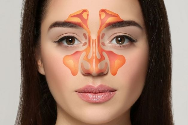 Triệu chứng của viêm xoang mũi dị ứng