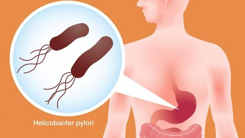 Xét nghiệm H.pylori là gì và những vấn đề liên quan