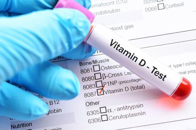 xét nghiệm vitamin D ở đâu