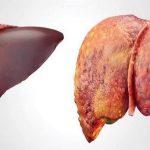 Bạn có biết xơ hóa gan là gì?Các cách điều trị