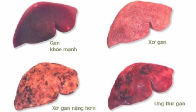 Nếu không chữa trị sớm rất có thể bệnh sẽ dẫn tới ung thư gan
