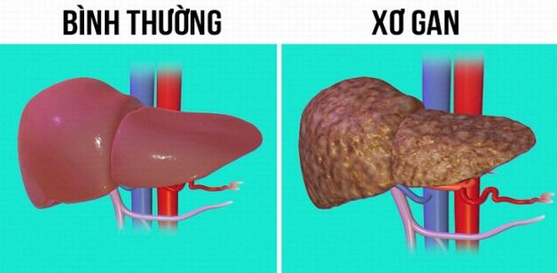 Xơ hóa gan là khi các tế bào gan bị thương tổn