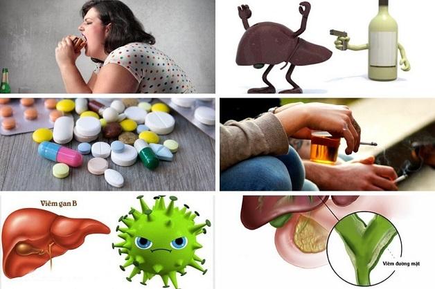 Các nguyên nhân gây xơ hóa gan là gì? Có nhiều nguyên nhân gây ra
