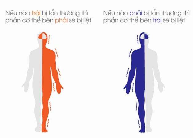 Xuất huyết não gây ra biến chứng gì