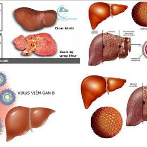 ung thư gan ở Việt Nam