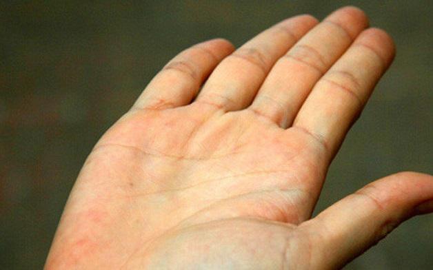 Vàng da là một triệu chứng của gan nhiễm mỡ nhẹ