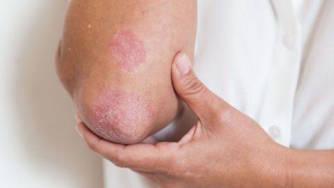3 thông tin nhất định phải biết về viêm khớp vảy nến