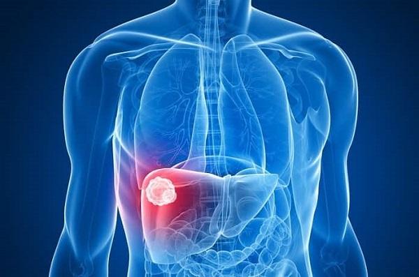 Việt Nam có tỷ lệ mắc ung thư gan cao hàng đầu thế giới