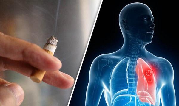 Thuốc lá là nguyên nhân gây ung thư phổi phổ biến hàng đầu ở nam giới
