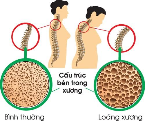 Loãng xương còn gọi là thưa xương, xốp xương là tình trạng giảm khối lượng xương, thường đi kèm với gãy xương, đặc biệt là lún các đốt sống. T