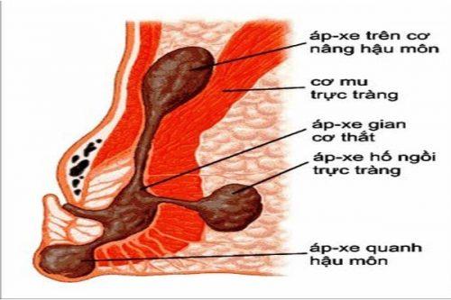 Apxe hậu môn là tình trạng các mô mềm quanh ống hậu môn bị viêm nhiễm lâu ngày tạo mủ và hình thành các ổ apxe