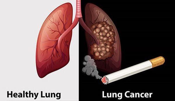 Thuốc lá là thủ phạm chính gây ung thư phổi