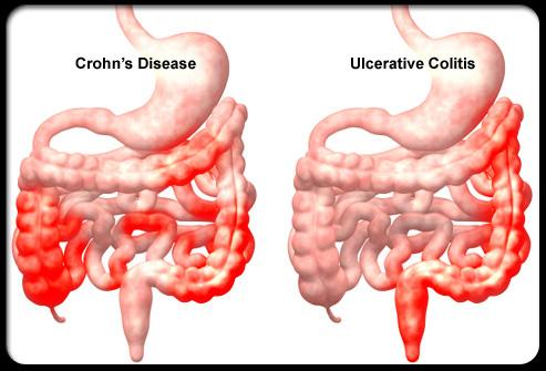 Bệnh Crohn đại tràng là bệnh lý đường ruột mạn tính.