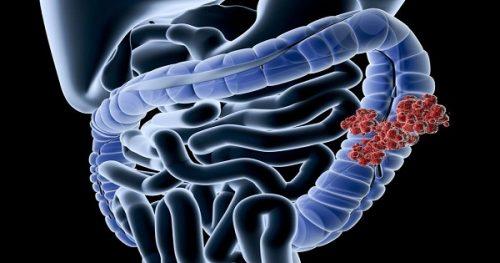 BệnhCrohn là một bệnh viêm tại đường ruột, gây loét thành trong của ruột non và ruột già