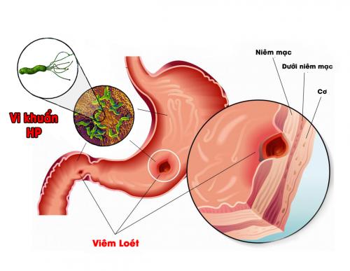 Đau dạ dày là bệnh thường gặp và phổ biến ở mọi đối tượng, lứa tuổi.