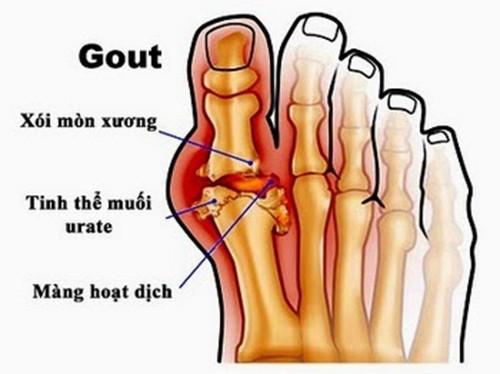 Bệnh gout đau ở đâu?