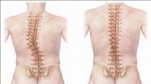 Vi khuẩn lao tấn công vào các xương lớn trên cơ thể