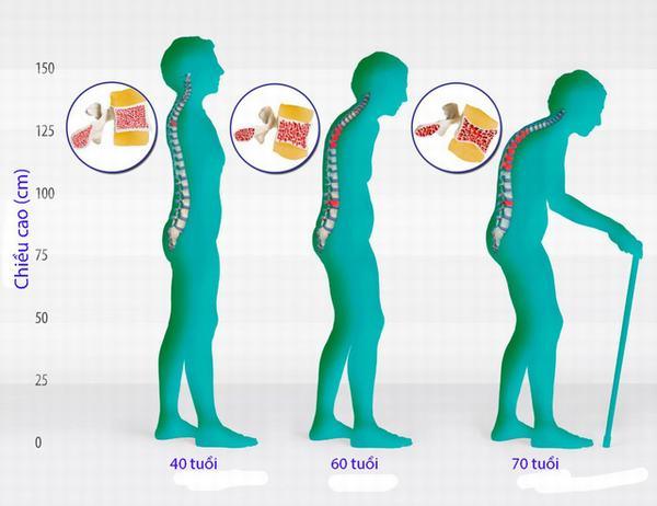 Loãng xương rất hay gặp ở phụ nữ mãn kinh