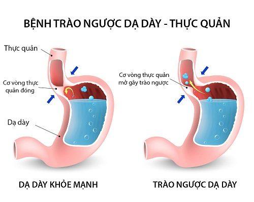 Khó nuốt là một biểu hiện của hội chứng trào ngược dạ dày thực quản