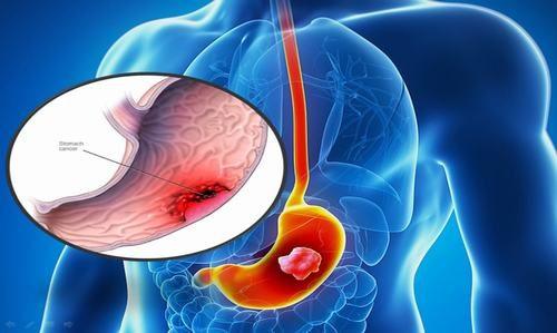 Ung thư dạ dày là khối u ác tính có thể phát triển ở bất cứ phần nào của dạ dày