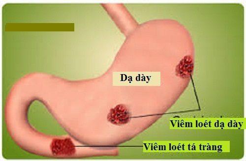 Viêm dạ dày tá tràng là một trong những bệnh lý đường tiêu hóa thường gặp
