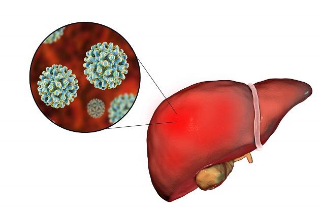 Tìm hiểu bệnh viêm gan B có chữa khỏi không
