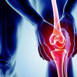 Bệnh viêm khớp gối và những lưu ý trong điều trị
