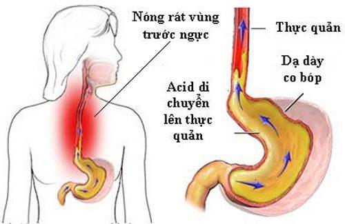 Khi bị viêm loét thực quản, người bệnh sẽ cảm giác khó nuốt, đau ngực, nóng rát vùng ngực...