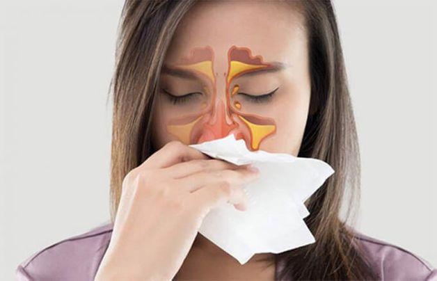 bị bệnh viêm xoang mũi có nguy hiểm không