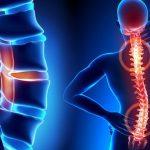 Khi nào nên đến bệnh viện chụp cộng hưởng từ MRI?