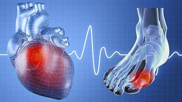 Bệnh gút gây biến chứng nguy hiểm, ảnh hưởng tới huyết áp, tim mạch, thận...