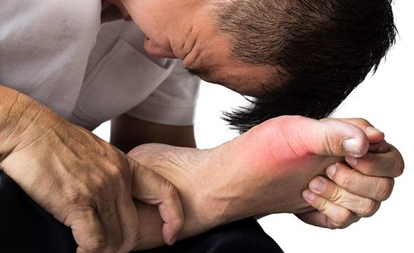 Khi thấy các triệu chứng cảnh báo gút, bạn nên đi khám ngay