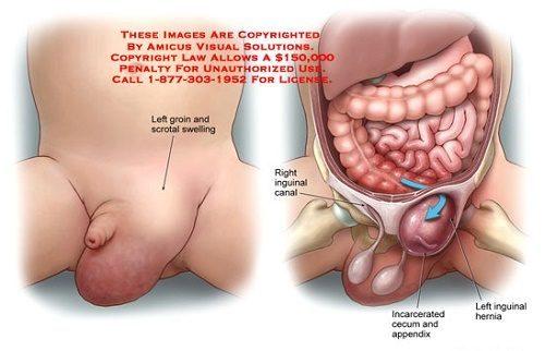 Thoát vị bẹn là bệnh nguy hiểm cần phát hiện và điều trị sớm