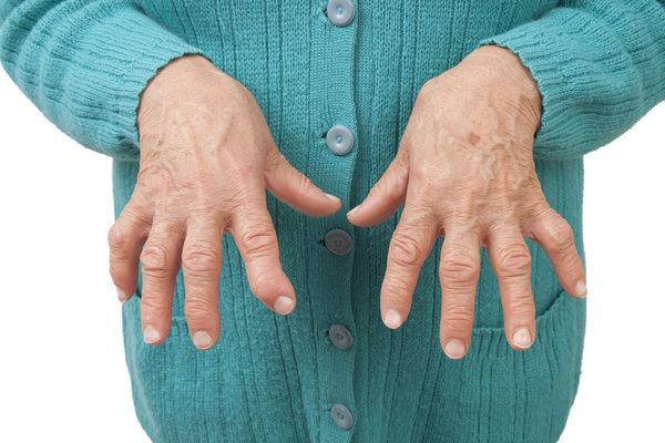 Viêm khớp có thể để lại nhiều di chứng nặng nề