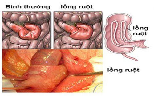 Lồng ruột là nguyên nhân gây bệnh tắc ruột phổ biến nhất ở trẻ em