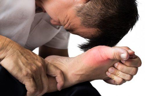 Các bệnh xương khớp thường gặp ở ngón chân cái