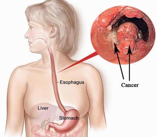 Ung thư thực quản là một trong những bệnh nguy hiểm nhất trong các ung thư tiêu hóa.