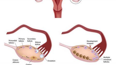 Các bệnh về buồng trứng