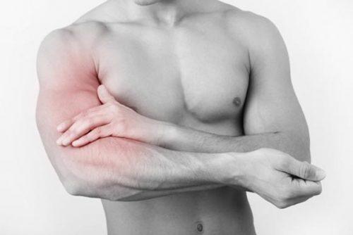 Các bệnh viêm cơ chi trên thường gặp