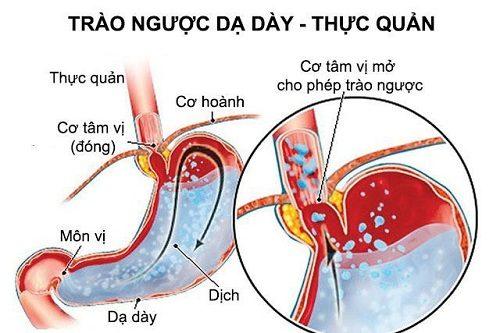 Bệnh trào ngược dạ dày có thể gây ra các biến chứng nguy hiểm nếu không được điều trị kịp thời, đúng phương pháp