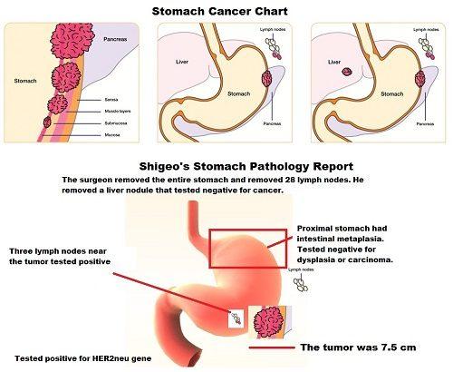 Ung thư dạ dày được chia thành 4 giai đoạn