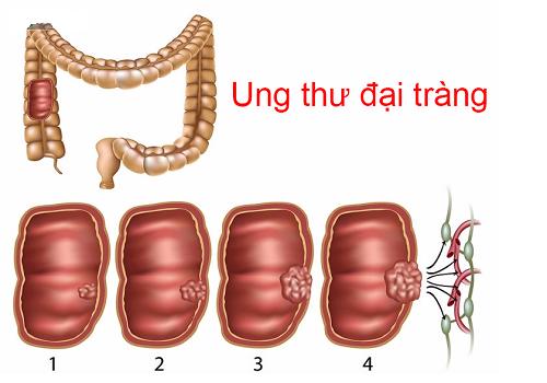 Ung thư đại tràng được chia thành 4 giai đoạn