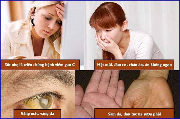 Khi ở giai đoạn mãn tính các triệu chứng viêm gan C ngày càng rõ rệt