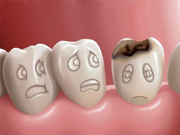 Sâu răng là một trong những nguyên nhân phổ biến gây đau răng ở trẻ.